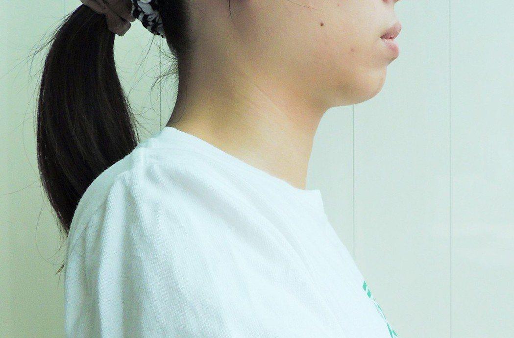 用捲尺測量脖圍,評估罹患第二型糖尿病風險。記者邱榆蕙/攝影