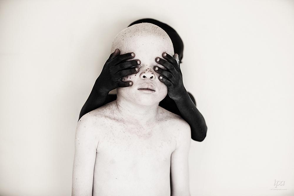 攝影者Marinka Masséus。專業新聞組第二名,拍攝坦尚尼亞的白化症孩童...