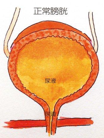 正常膀胱 繪圖/台北馬偕醫院住院醫師吳庭蕙