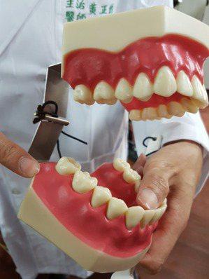 智齒是在牙齒最後方的4顆牙齒。 記者修瑞瑩/攝影