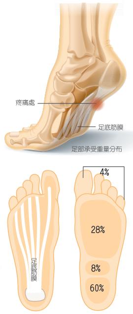 足底筋膜炎的頭號公敵是「老化」,一旦超過30歲,身體的肌力和韌帶等,會以每年1%...
