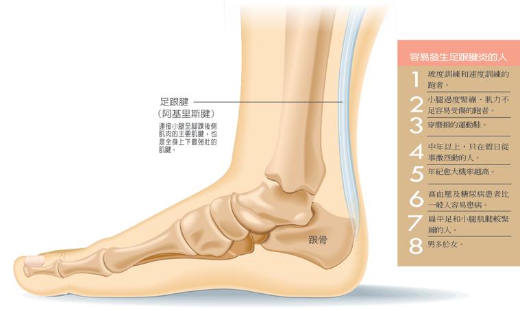 「阿基里斯肌腱炎」也就是俗稱的足跟腱炎,隨著路跑風氣的盛行,也成為跑者常見的運動...