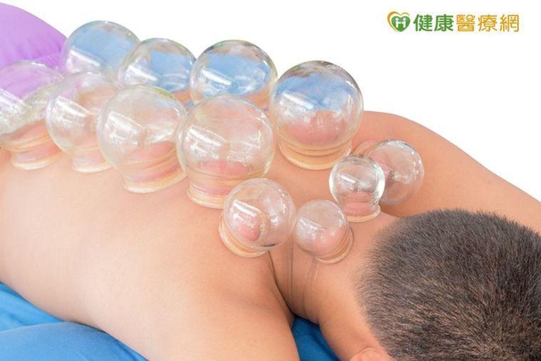 蕁麻疹讓他坐立難安 拔罐也能緩解皮癢