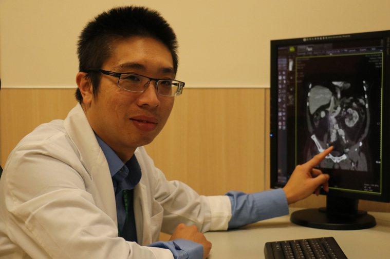 亞洲大學附屬醫院臟血管外科主任劉殷佐(左)形容腹主動脈瘤若不處理,像是身上綁著炸...