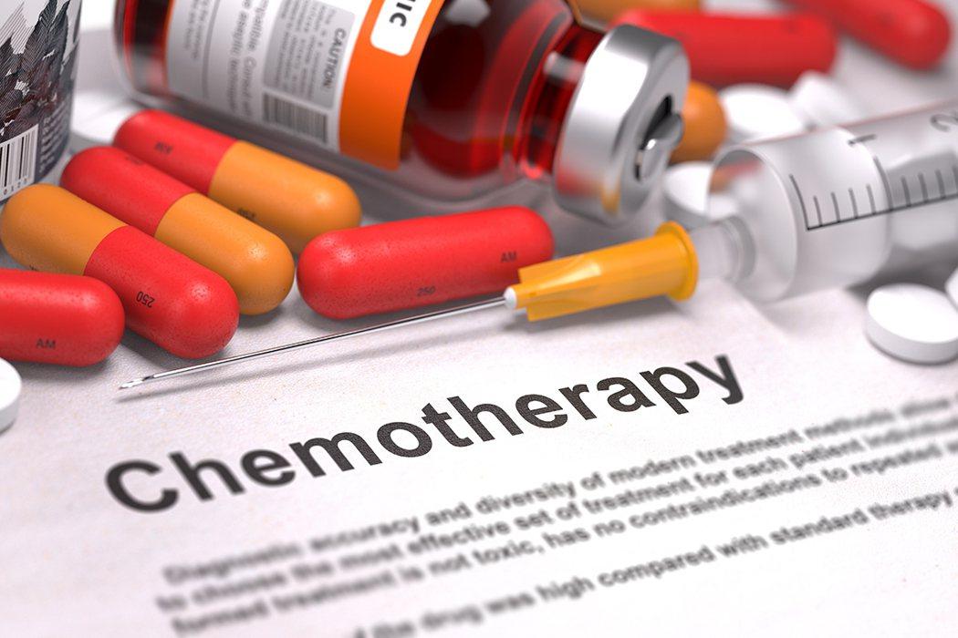 癌症病人一定要 做化療或放射線治療嗎? 圖片/shutterstock