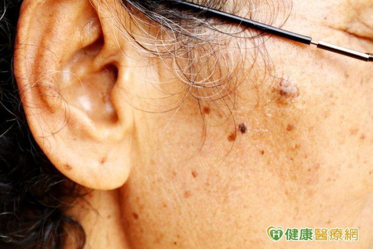 4大皮膚癌徵兆:斑點的形狀不對稱、顏色不均勻或深淺不一、短期形狀擴散、發生隆起或...