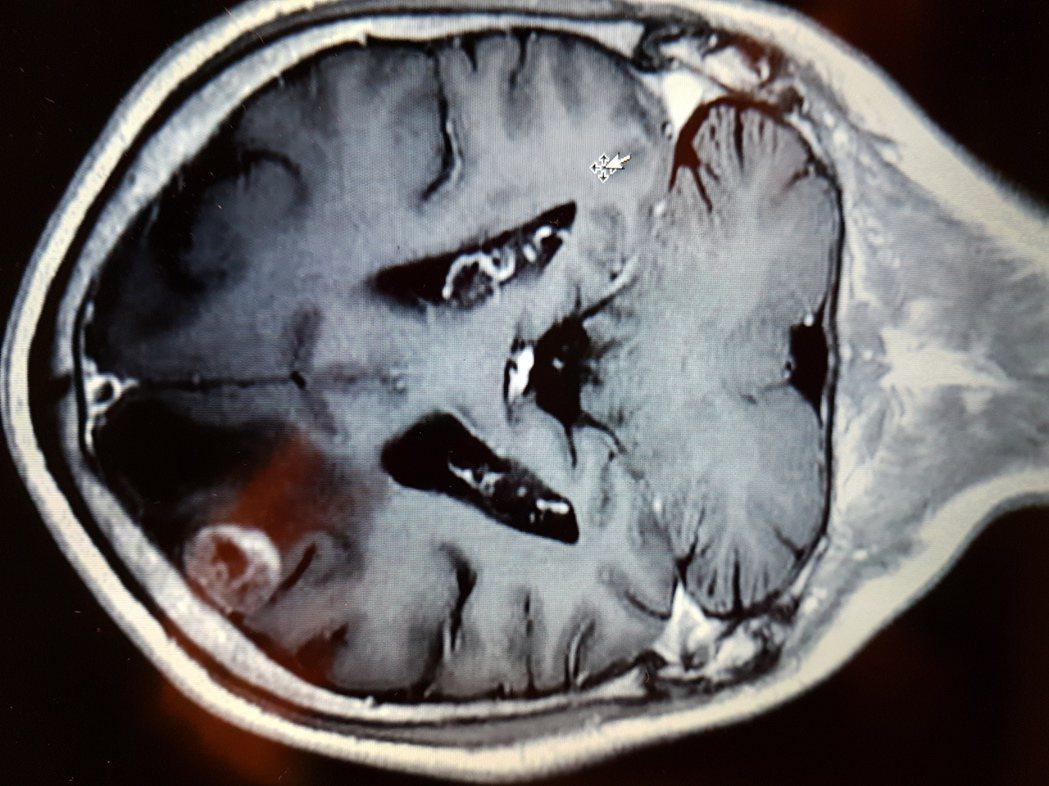 62歲男子右臂抽搐,竟然是肺癌轉移到腦部,從醫學影像上可以看到右側大腦上方有圓型...