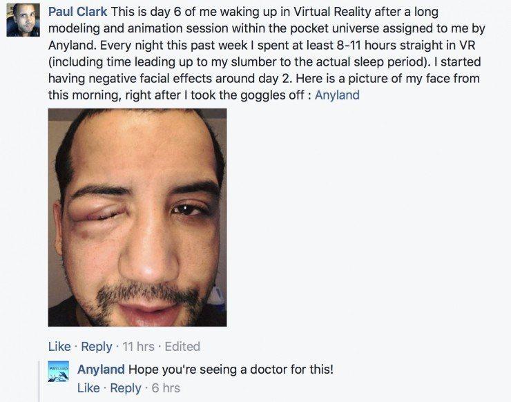 VR玩家戴著HTC Vive進入夢鄉,醒來後發現自己的眼睛竟然腫得不成樣子了。圖...