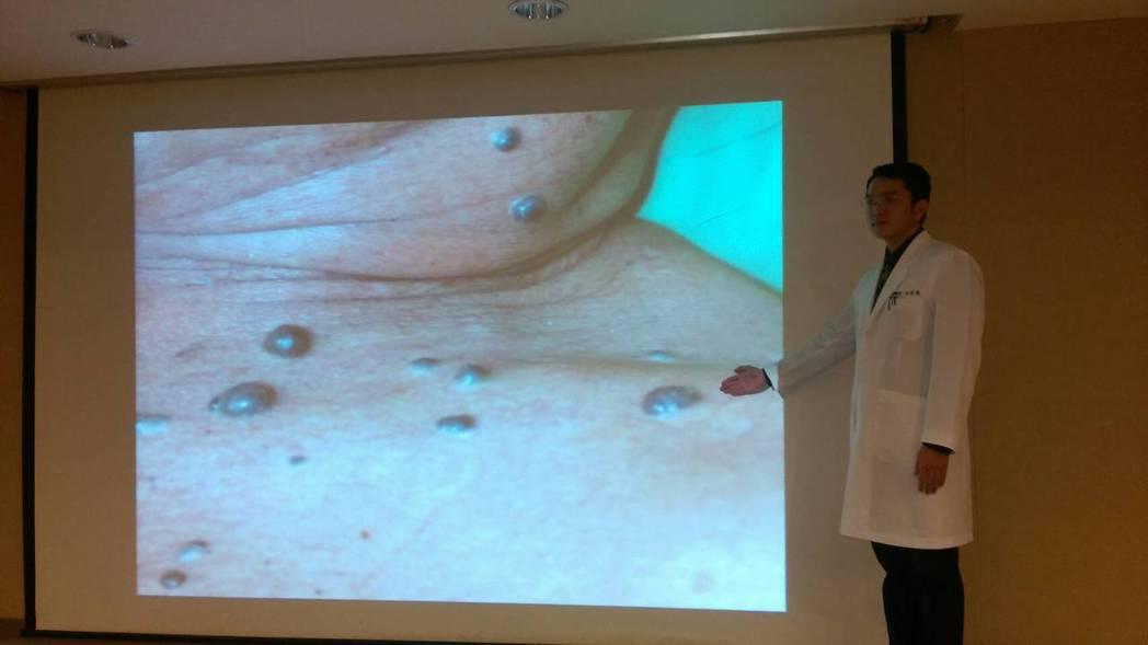三軍總醫院皮膚科主治醫師洪誌聰說明72歲男性「藍色橡皮泡泡痣」併發中風罕見個案。...