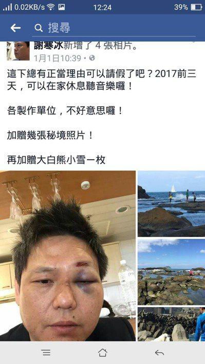 名嘴謝寒冰醉後受傷,在臉書上貼出近照,左臉腫得離譜。圖/翻攝自臉書