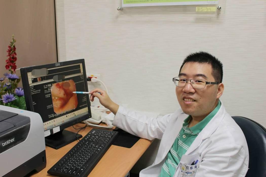 醫師莊家舜建議長期服用止痛劑或阿斯匹靈的人,若有上腹不適應定期接受胃鏡檢查,如此...