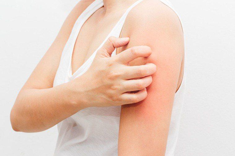(示意圖)每到冬天全身起疹子癢到不行 竟是這裡出問題! 圖片/shutterst...