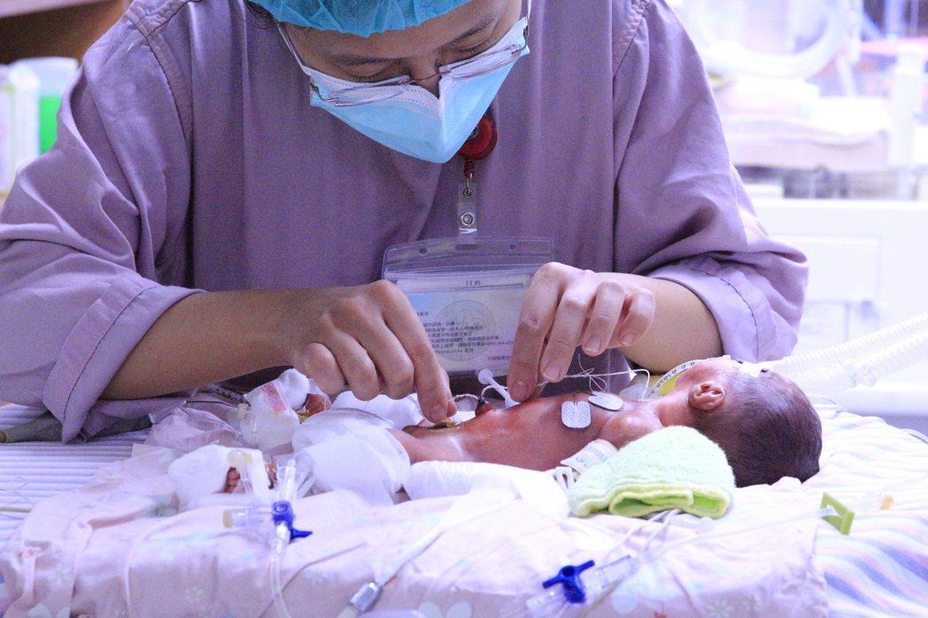 醫事人員正在為早產兒進行照護。 圖/早產兒基金會提供