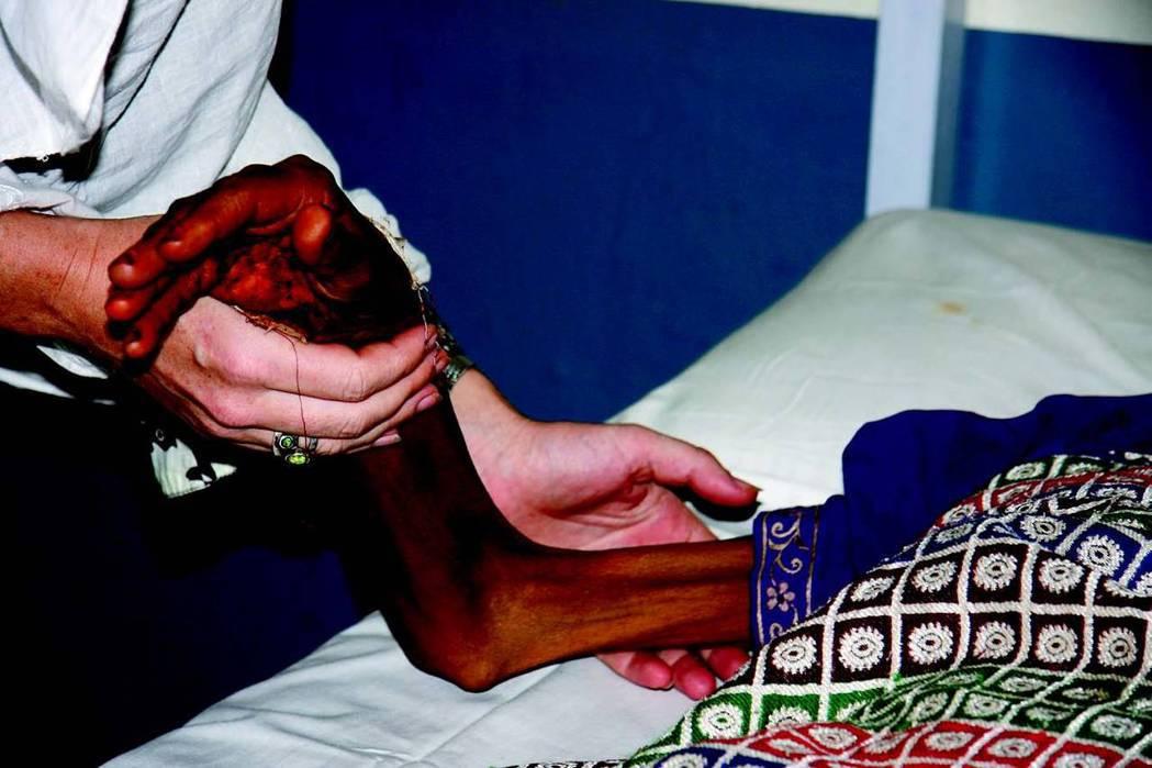二〇〇九年,MSF啟動計畫治療卡拉達卡的利什曼原蟲病患者,該地位於局勢多變的巴基...