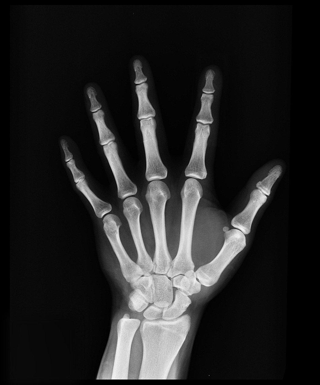 隨著年齡老化,關節炎、骨質疏鬆或骨折是不少長輩共同的痛,當今用藥、手術與各種治療...