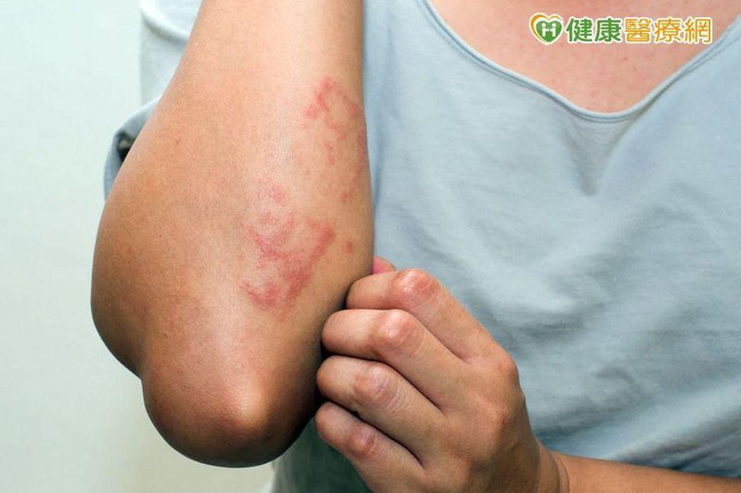 乾癬常見表徵是肌膚會出現塊狀的紅斑,以及銀白色皮屑。