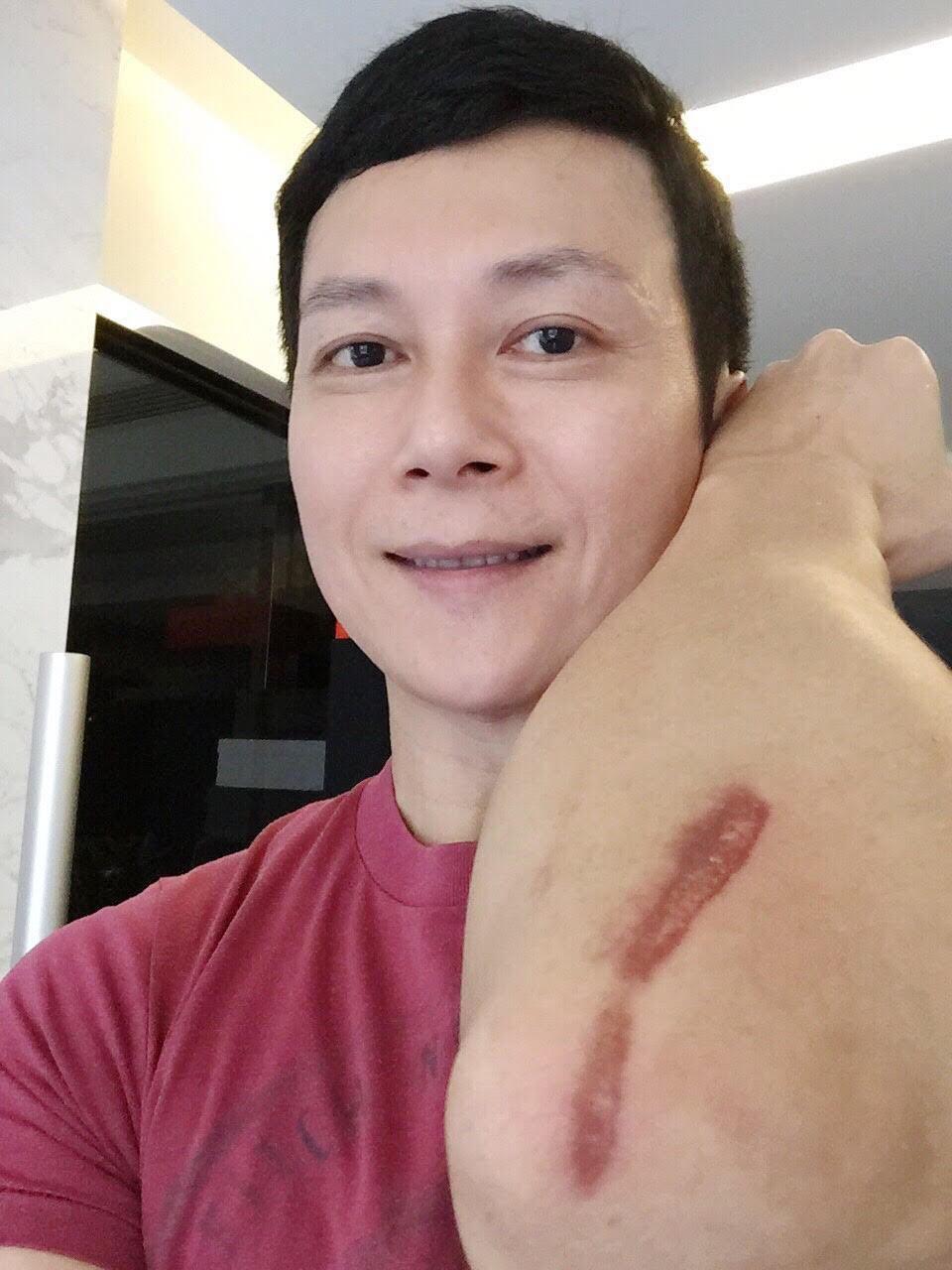 王燦為了表演練習時受傷,留下一道深深的疤痕。圖/民視提供