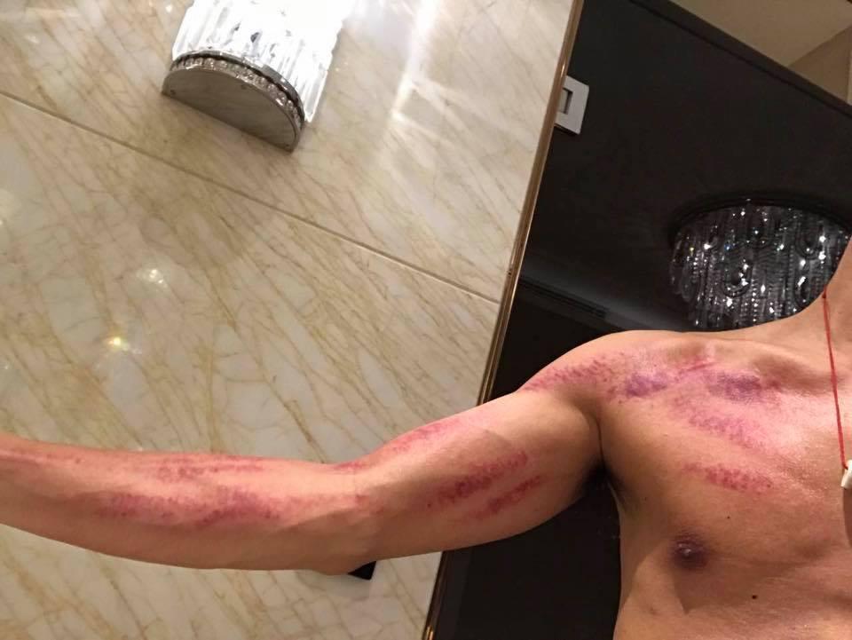 謝霆鋒日前在臉書貼出照片,右手手臂與胸膛滿滿都是觸目驚心的紅色刮痧痕跡。圖/取自...