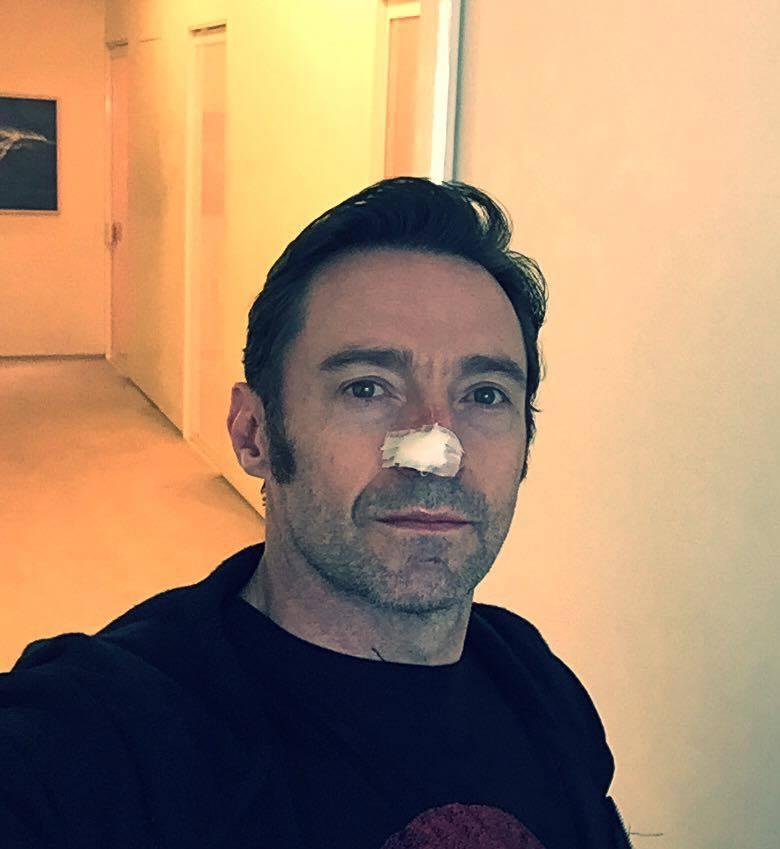 月底即將隨新片「羅根」來台宣傳的巨星休傑克曼,在臉書貼出一張鼻頭包著紗布的自拍照