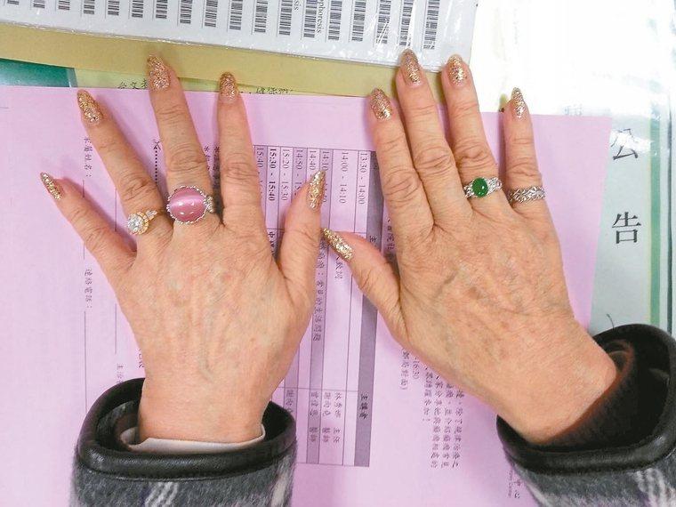 阿水嬸的孫女幫她畫了漂亮的指甲。 圖/謝向堯醫師提供