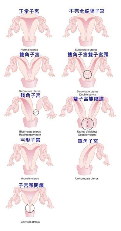 不同的子宮發育類型,對婦女不孕和早期流產風險具顯著影響,並可能引起痛經和性交疼痛...