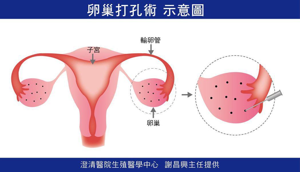 醫師謝昌興說明,卵巢打細孔,如同為卵子打開多個窗口,讓卵巢正常排卵,順利進入輸卵...