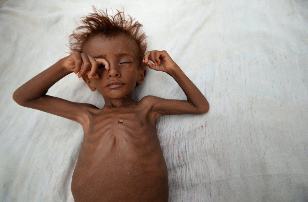宣布「饑荒」是誰說了算?發出警告後,國際社會該如何回應?圖為葉門內戰中,急性嚴重...
