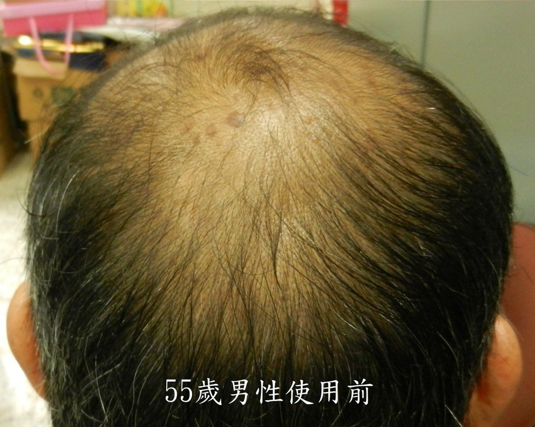 農委會農試所研究發現,米糠萃取出特殊油脂,有消炎止痛生髮的效果。圖/農試所提供