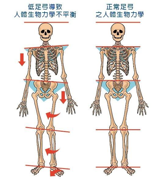 左為足弓過低導致足體內旋,使脛骨、膝蓋、股骨和髖關節連帶往內轉,同側骨盆與對側肩...