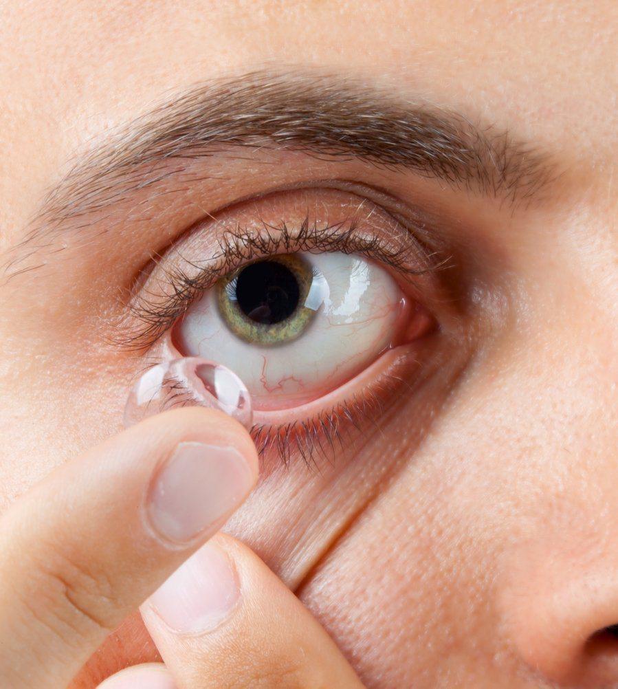 5成國人每天隱形眼鏡配戴長達12小時以上,專家建議可選擇透氧率較高的矽水膠材質產...