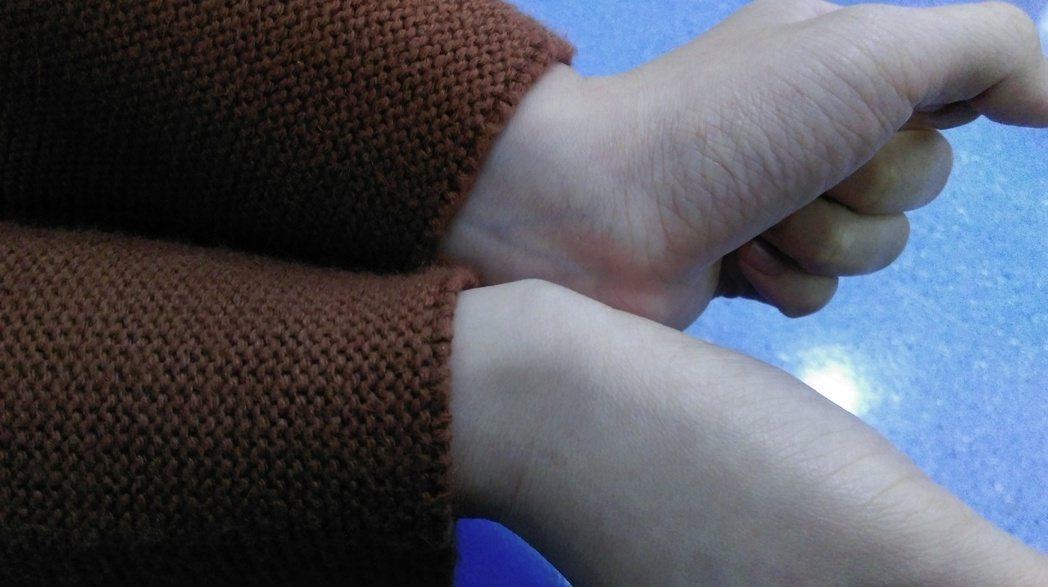 陳姓女子因手腕長期使用滑鼠,右手手腕處突出一個瘤狀物,即「腱鞘囊腫」。圖/童綜合...