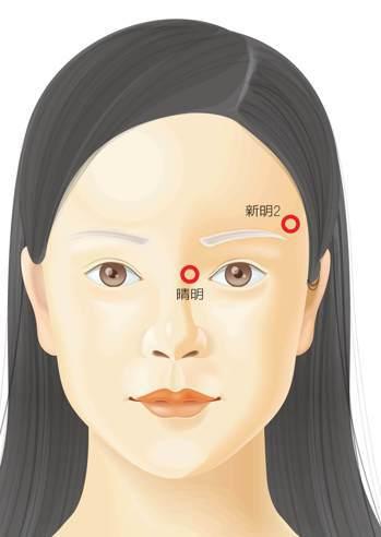 穴位「新明2」,位於眉梢上一寸外開五分處,「晴明」在鼻樑兩側距內眼角半分的地方。...