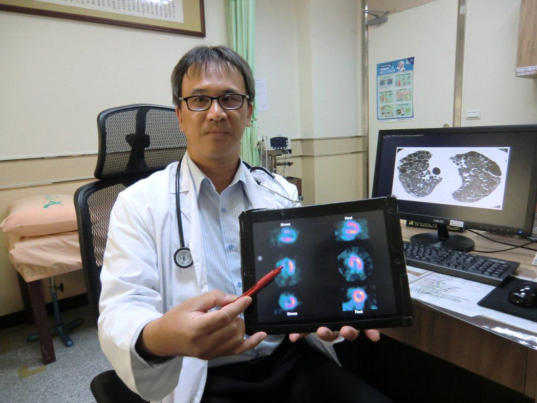 內科醫師巫慶仁說,青壯年老菸槍很清楚抽菸的害處,卻無法克服菸癮問題,等到身體出現...
