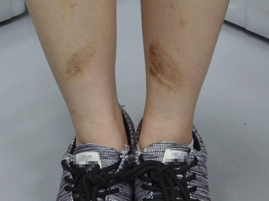 傷疤處的色素沉著,會隨時間自然淡化。圖/奇美醫院提供