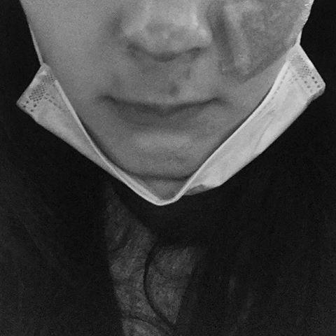 余香凝13日晚間遭遇車禍,鼻骨碎裂。圖/取自臉書