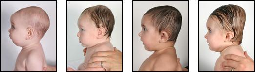 由左到右是:普通、微扁、很扁、嚴重 圖片來源/ cranial tech