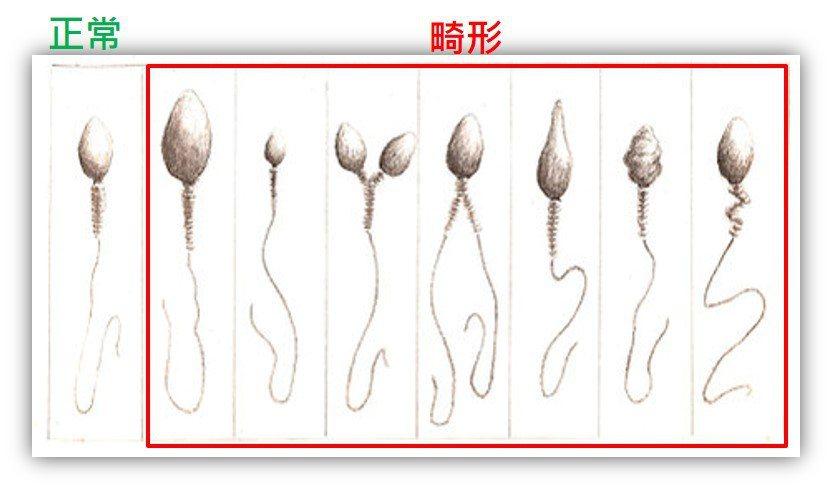 正常與畸形精子。 圖/尤星策醫師提供