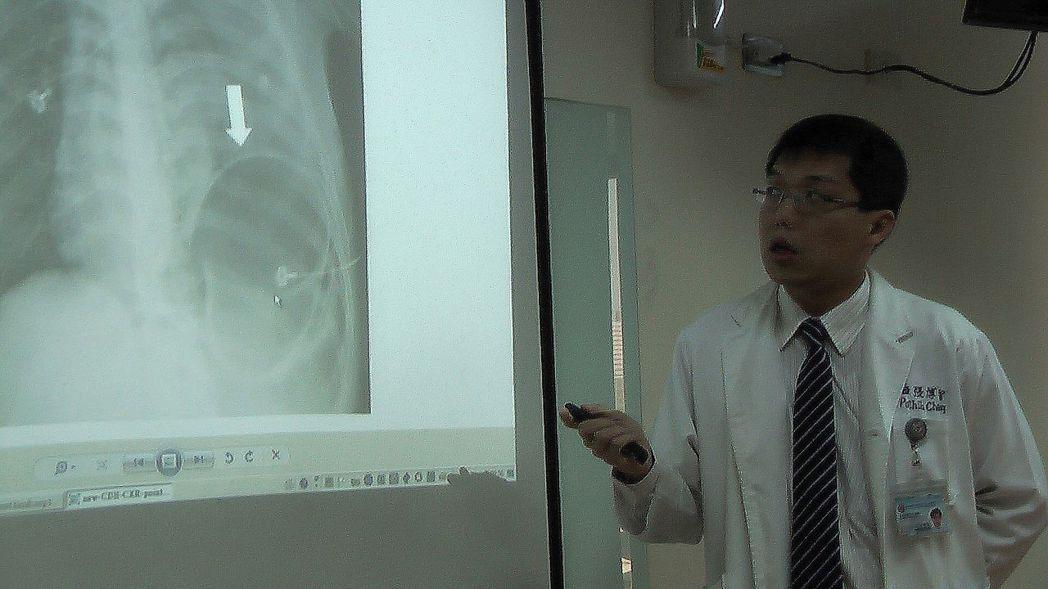 高醫胸腔外科醫師張博智表示,這名男大生應是本身有先天性橫膈膜缺損,運動時腹壓上升...