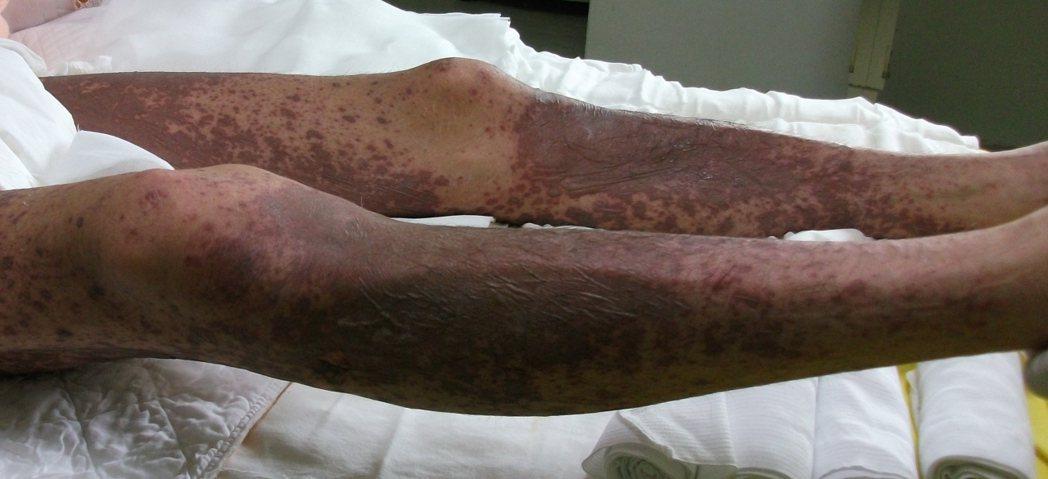 史蒂芬強森症候群非常恐怖,嚴重會皮膚剝離,得轉燒燙傷病房治療。 圖/台北榮總提供