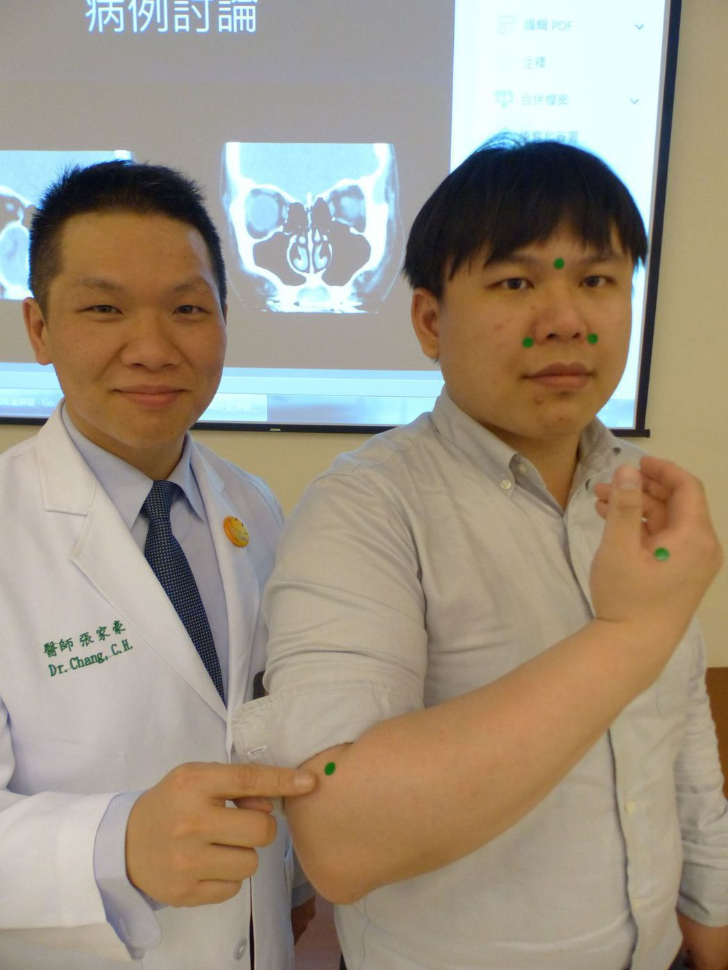醫師張家豪(左)建議,民眾可早晚按壓手臂上的曲池穴等,促進氣血循環並避免鼻塞(右...