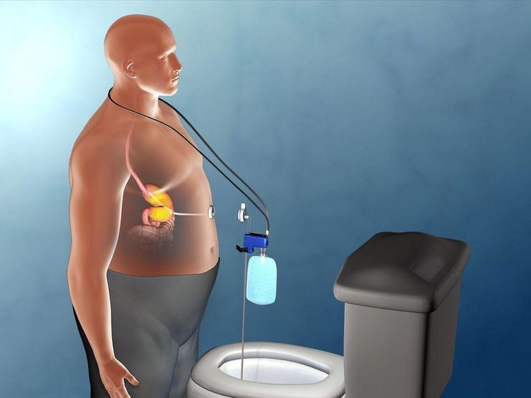 ▲「助抽器」由體內導管及體外抽吸裝置構成。《圖片來源:Aspire Bariat...