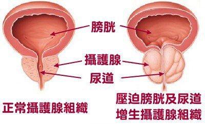 圖╱台大醫院竹東分院提供