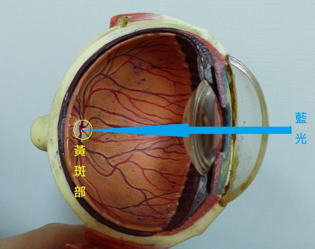 藍光(可見光)射入黃斑部,造成黃斑部病變。 圖/報系資料照