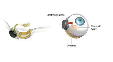 人工電子眼外觀就像一副眼鏡,鏡架旁掛著電池裝備,電力刺激放置在黃斑部上的晶片,患...