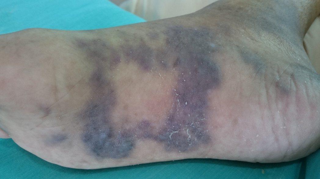 卡波西氏肉瘤好發在高齡男性的肢體上,絕大多數先出現在下肢,尤其是足部或踝部。照片...