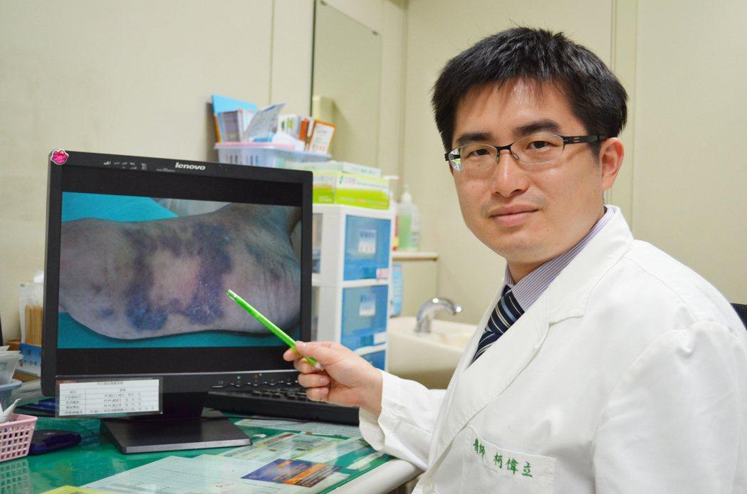 皮膚科主任柯偉立表示,典型卡波西氏肉瘤病程發展較緩慢,容易被患者忽略。照片/澄清...