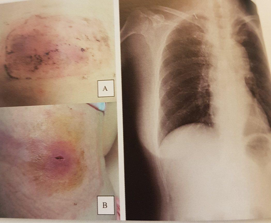南部一名女子疑似因為長期貼中草藥膏貼布,感染類鼻疽,兩度肺炎住院,圖為背上皮膚因...