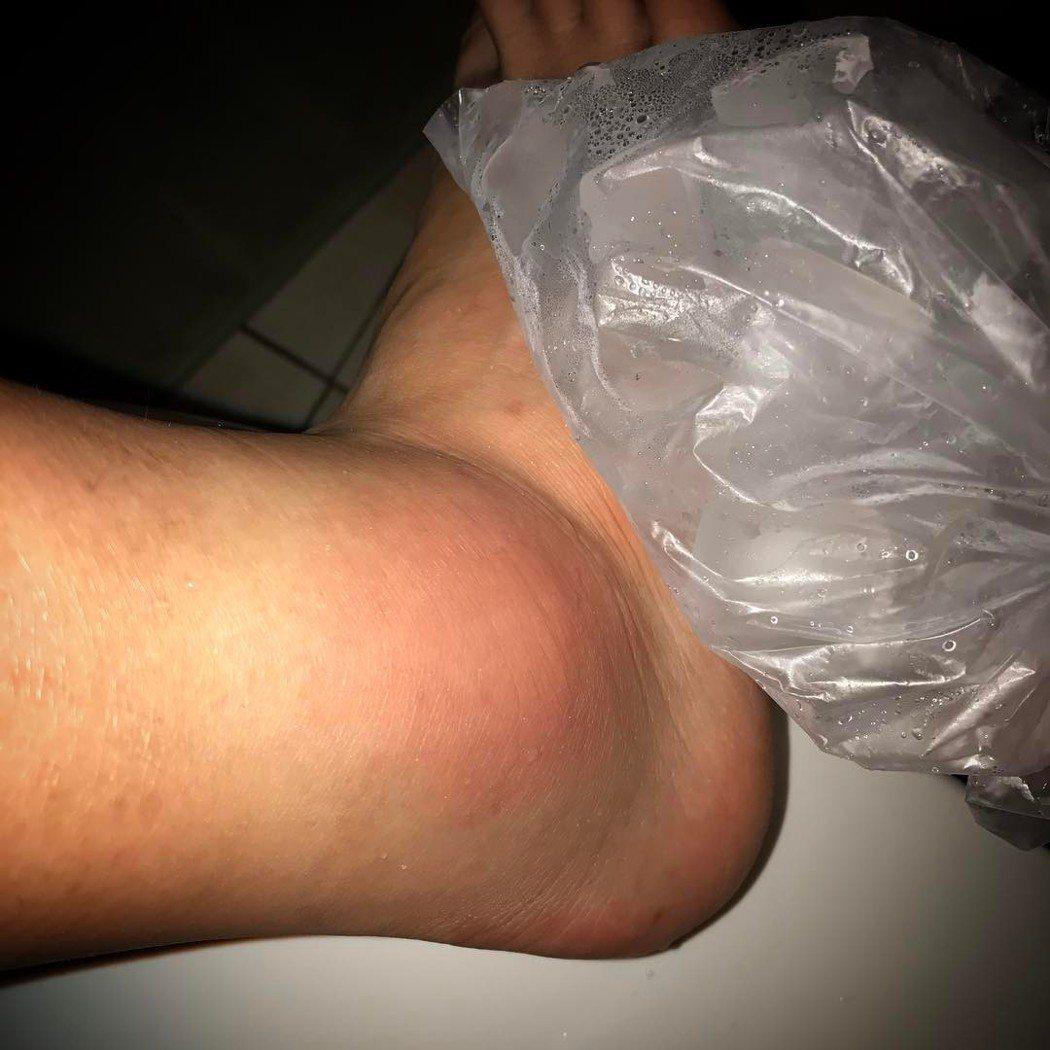 四葉草日前泡澡滑倒,扭傷腳踝。圖/擷自IG
