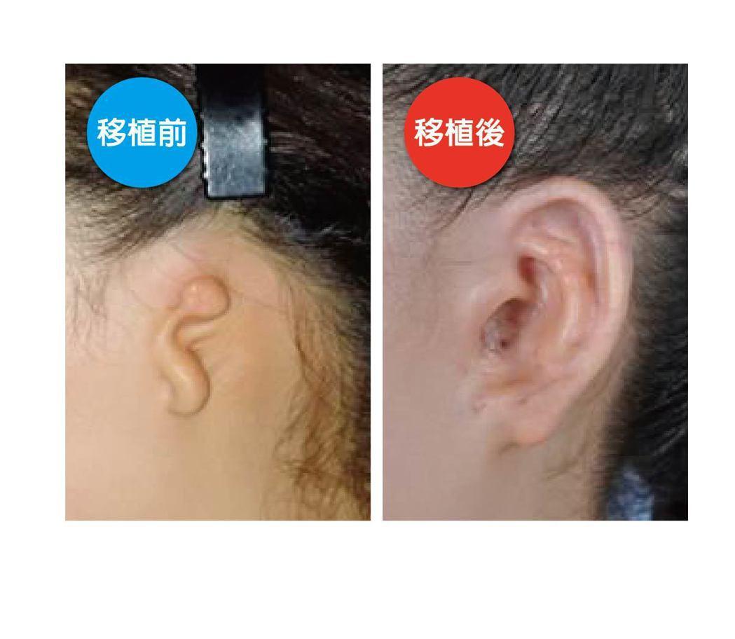 大陸另一名患者的右耳生來就沒外耳道,整個耳廓只有一點點,是先天性小耳畸形。也經由...