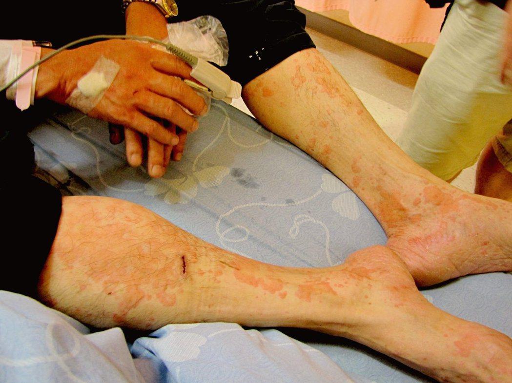 民眾頭頸手部被虎頭蜂叮螯十餘下,雙腿起紅疹腫痛難耐。 圖/報系資料照片